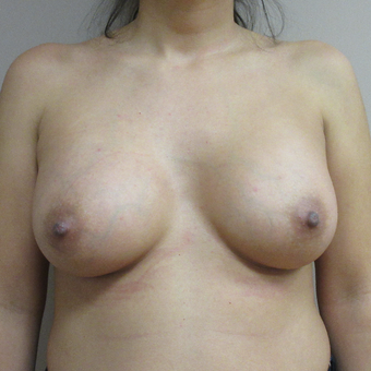 25-34 year old woman treated with Breast Augmentation after 3465114