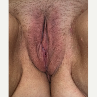 45-54 year old woman treated with Labiaplasty after 3628494
