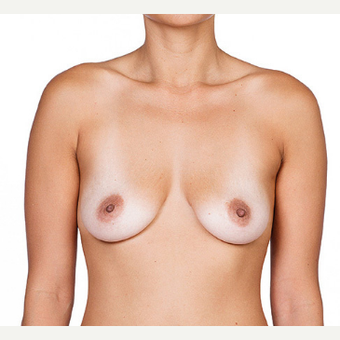 Breast Implants before 3294412