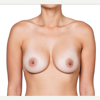 Breast Implants after 3294412