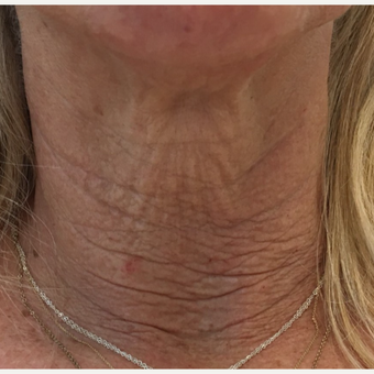 60 Year Old Female with Neck Skin Laxity