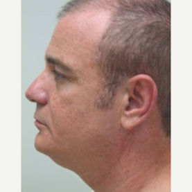 35-44 year old man treated with Non Surgical Face Lift before 3137282