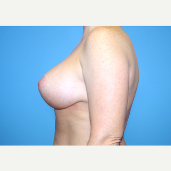 35-44 year old woman treated with Breast Implants after 3440017