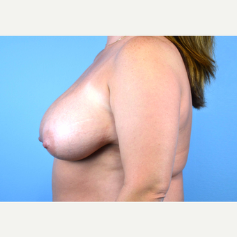 35-44 year old woman treated with Breast Implants before 3440017