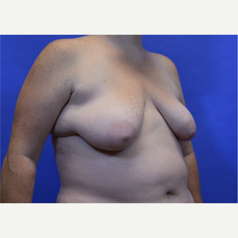 35-44 year old woman treated with Breast Lift before 3580013