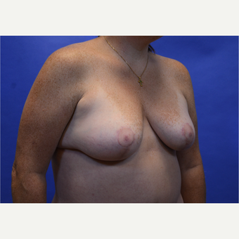 35-44 year old woman treated with Breast Lift after 3580013