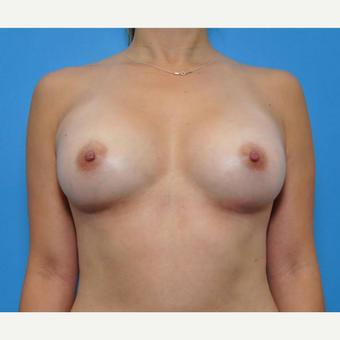43 year old female after breast augmentation with silicone implants after 3681885