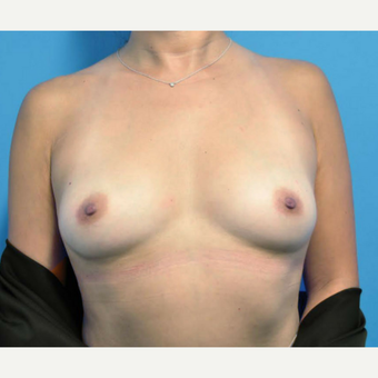 43 year old female after breast augmentation with silicone implants before 3681885