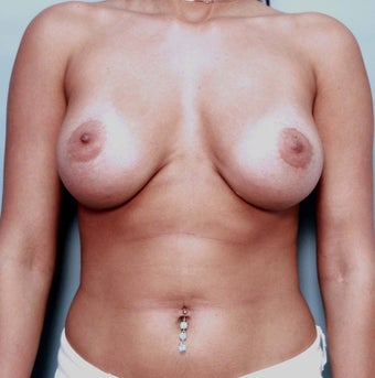 Breast Augmentation Implant Exchange before 130660