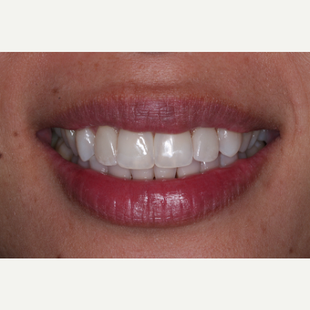35-44 year old woman treated with Invisalign after 3676677