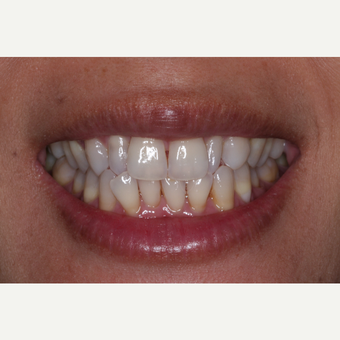 35-44 year old woman treated with Invisalign before 3676677