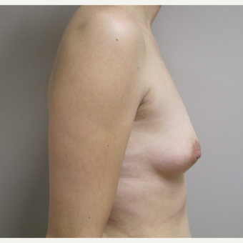 Breast Augmentation before 3536019