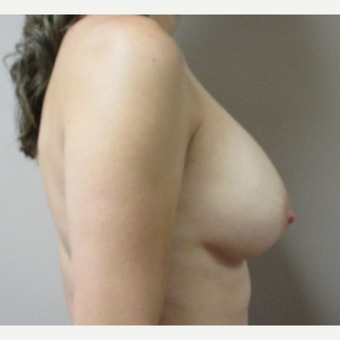 Breast Augmentation after 3536019