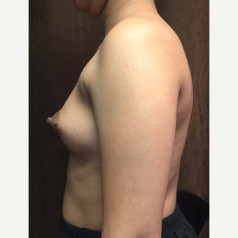 25-34 year old woman treated with Breast Augmentation before 3049426
