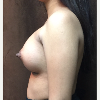 25-34 year old woman treated with Breast Augmentation after 3049426