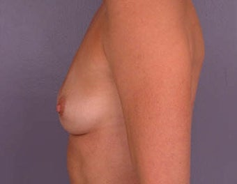 Breast Augmentation before 281424