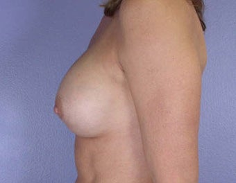 Breast Augmentation after 281424