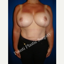 55-64 year old woman treated with Breast Implants after 3104556