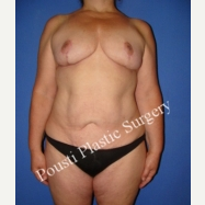 55-64 year old woman treated with Breast Implants before 3104556
