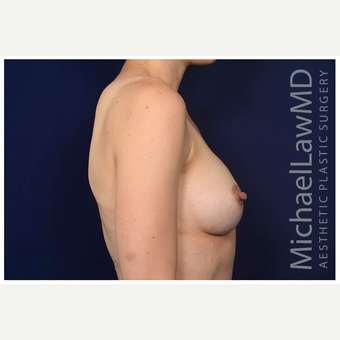 25-34 year old woman treated with Mentor Breast Implants after 3383440
