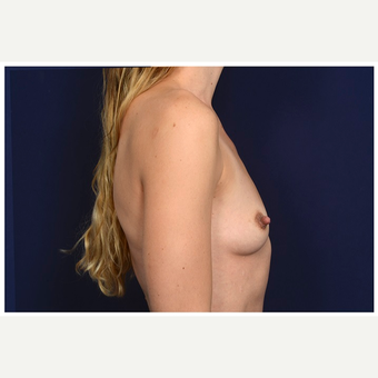 25-34 year old woman treated with Mentor Breast Implants before 3383440