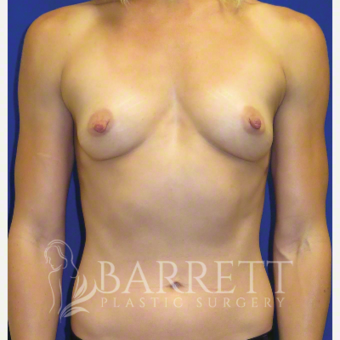 25-34 year old woman treated with Breast Implants before 3685263