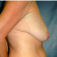 46 year old woman treated with Breast Lift with Implants before 3666113