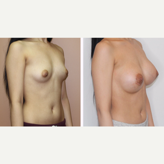 25-34 year old woman treated with Breast Augmentation before 3333126