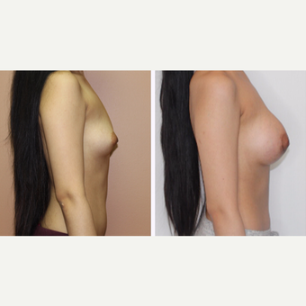 25-34 year old woman treated with Breast Augmentation after 3333126