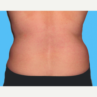 Liposuction after 3810558