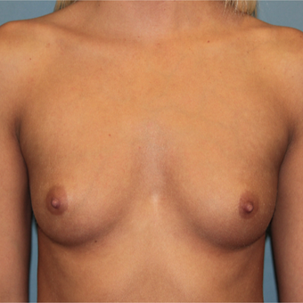 28 year old has breast augmentation with Natrelle Breast Implants before 3465216