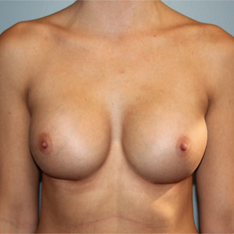 28 year old has breast augmentation with Natrelle Breast Implants after 3465216
