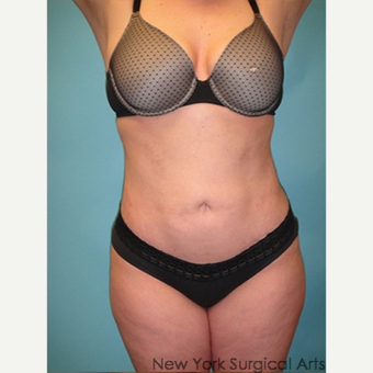35-44 year old woman treated with Smart Lipo after 3437374