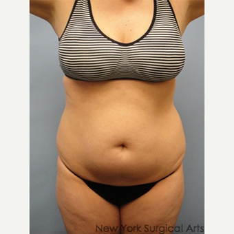 35-44 year old woman treated with Smart Lipo before 3437374