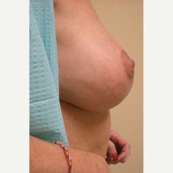 55-64 year old woman treated with Breast Lift after 2037365