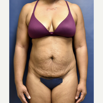 45-54 year old woman treated with Tummy Tuck before 3486241
