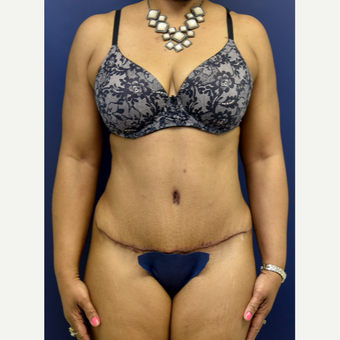 45-54 year old woman treated with Tummy Tuck after 3486241
