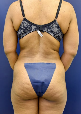 45-54 year old woman treated with Tummy Tuck 3486241