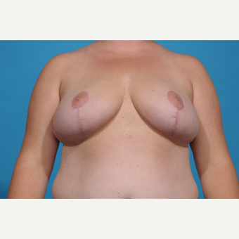 35-44 year old woman treated with Breast Reduction after 3776960