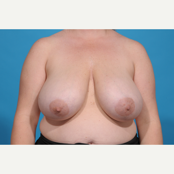 35-44 year old woman treated with Breast Reduction before 3776960