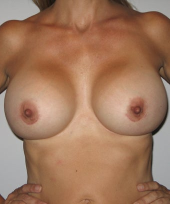 57 Year Old Woman with Silicone Breast Implants after 1029231