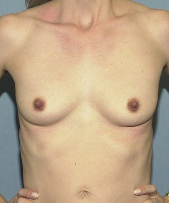 57 Year Old Woman with Silicone Breast Implants before 1029231