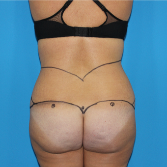 35-44 year old woman treated with Liposuction before 3332853