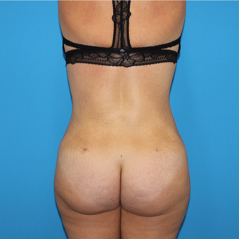 35-44 year old woman treated with Liposuction after 3332853