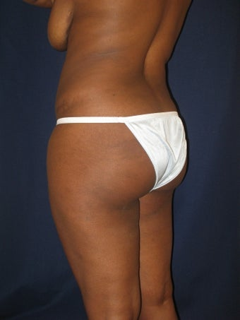 Scoop Lift/ Brazilian Butt Lift before 1147805