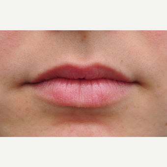 Juvederm for lip augmentation before 3097341