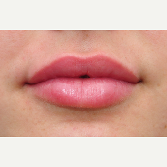 Juvederm for lip augmentation after 3097341
