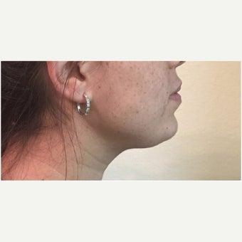25-34 year old woman treated with Kybella after 2497293