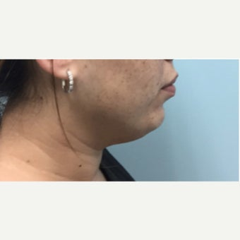 25-34 year old woman treated with Kybella before 2497293
