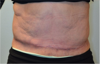 68 year old woman treated with panniculectomy along with abdominal wall reconstruction after 2562574
